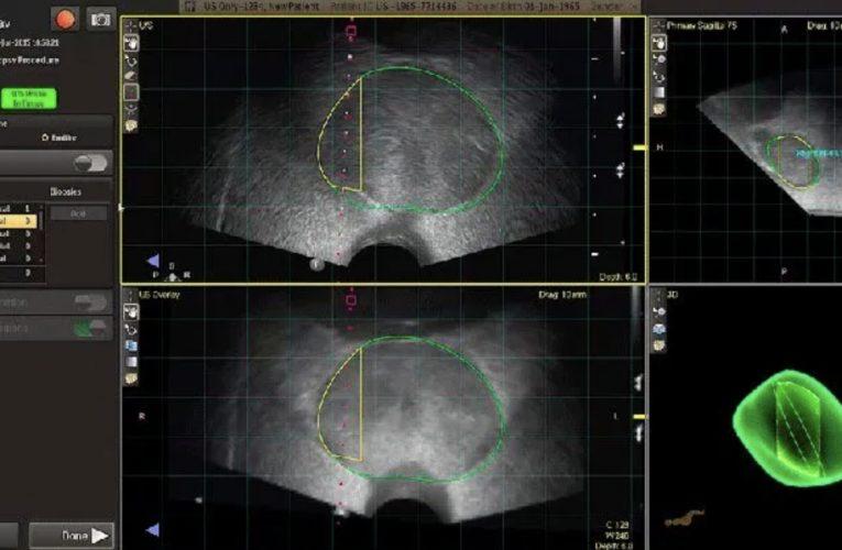 [香港泌尿科診所] 您知道前列腺活檢的替代方法嗎?