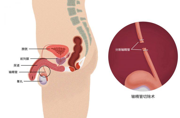[香港泌尿科診所] 輸精管切除術:將事實與虛構分開