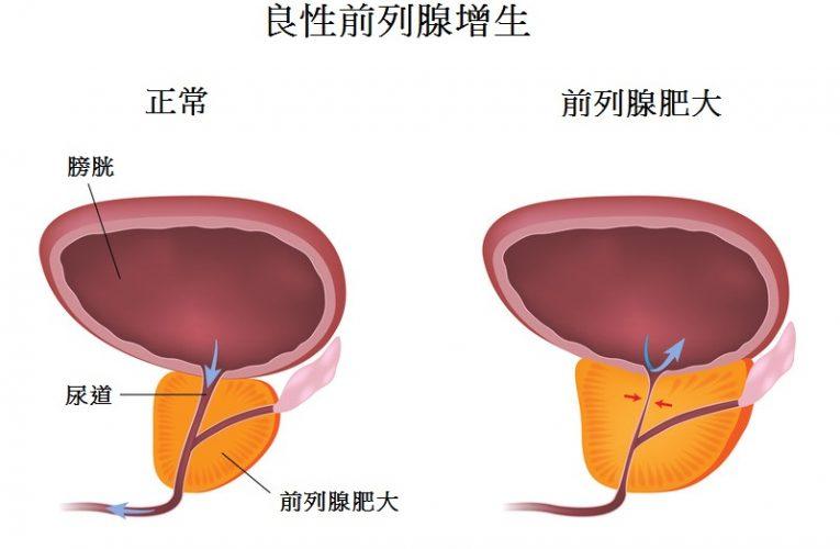 什麼是前列腺增生?